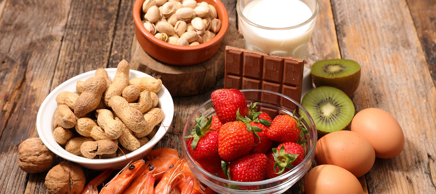Food Allergies Bio Energy Therapy